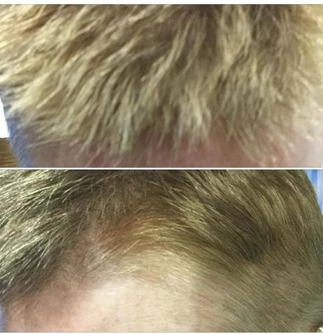 Hair#3